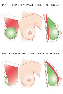 implante_mamario